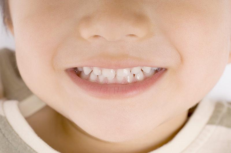 小児歯科のポイント