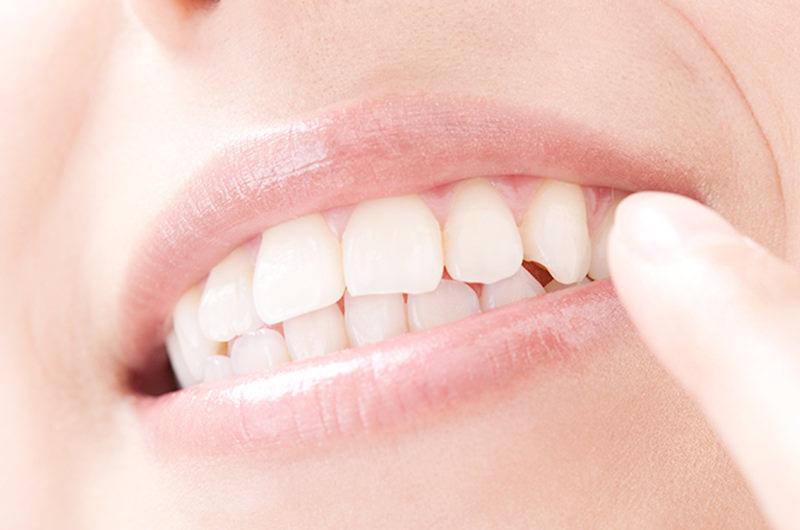 一般歯科における治療のポイント