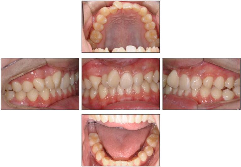 歯牙腫摘出術